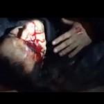 Евротвари выкололи глаз и отрубили руку пленному бойцу «Беркута»